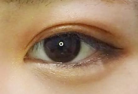 """まぶたが黒目にかかっている""""一重""""や""""奥二重""""の人に似合うのは「幅の狭い平行二重」 after"""