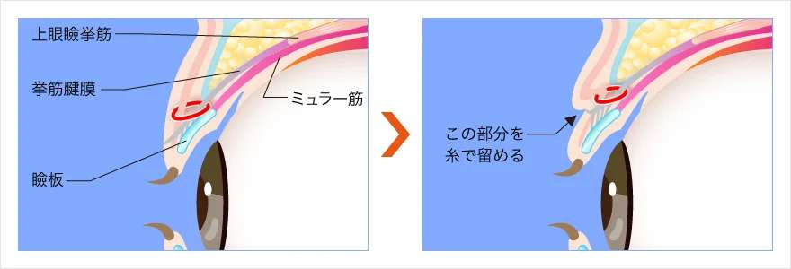TCB二重術(挙筋法)