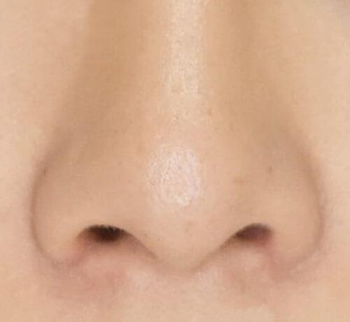 鼻翼縮小完全内側法症例写真03after