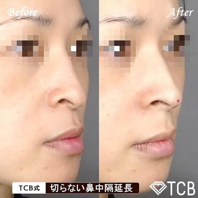 切らない鼻中隔延長症例写真ビフォーアフター01