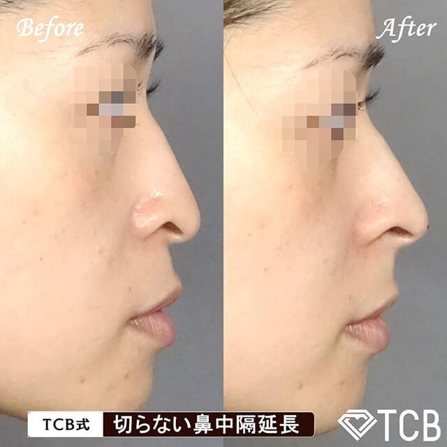 切らない鼻中隔延長症例写真ビフォーアフター02