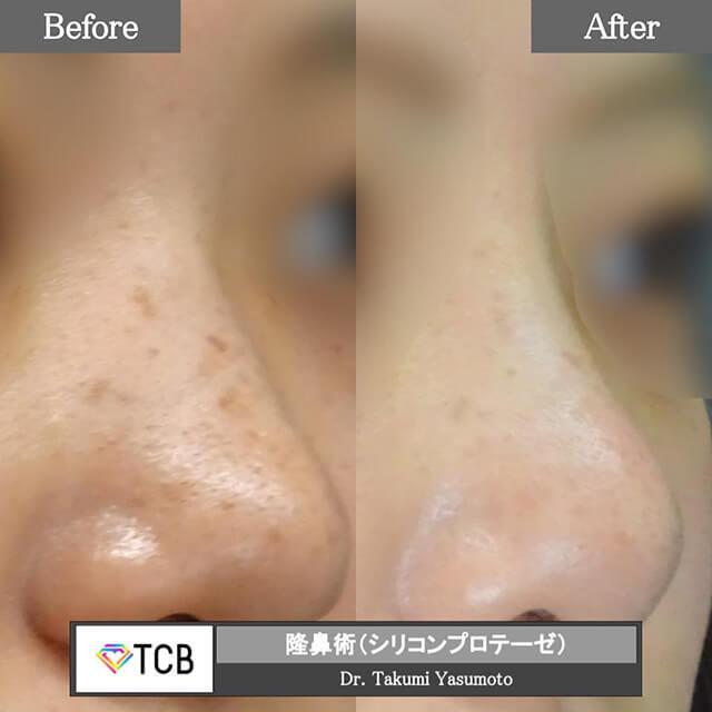 隆鼻術シリコンプロテーゼ症例写真ビフォーアフター02