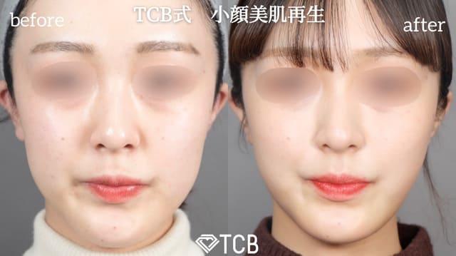倉島医師が行った小顔美肌再生のビフォーアフター02