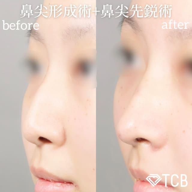 倉島医師が行った鼻尖形成術+鼻尖先端術のビフォーアフター01